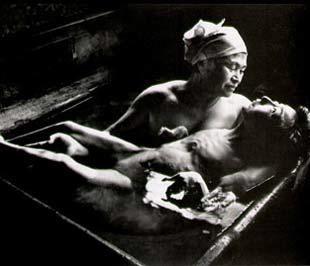 """Một trong những bức ảnh nổi tiếng nhất về """"thảm hoạ Minamata""""."""