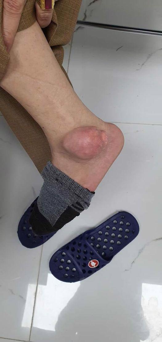 Nổi u to như quả ổi vì tự chữa Gout bằng thuốc trên mạng - Ảnh 1.