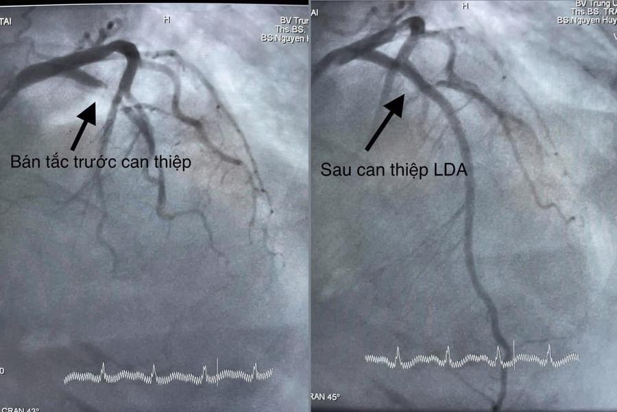 Bệnh nhân nhồi máu cơ tim cấp hồi sinh kỳ diệu - Ảnh 1.