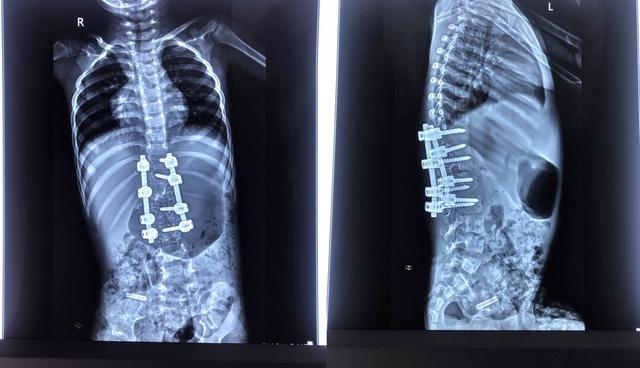 Bệnh nhi 3 tuổi chỉnh hình cột sống thành công - Ảnh 1.