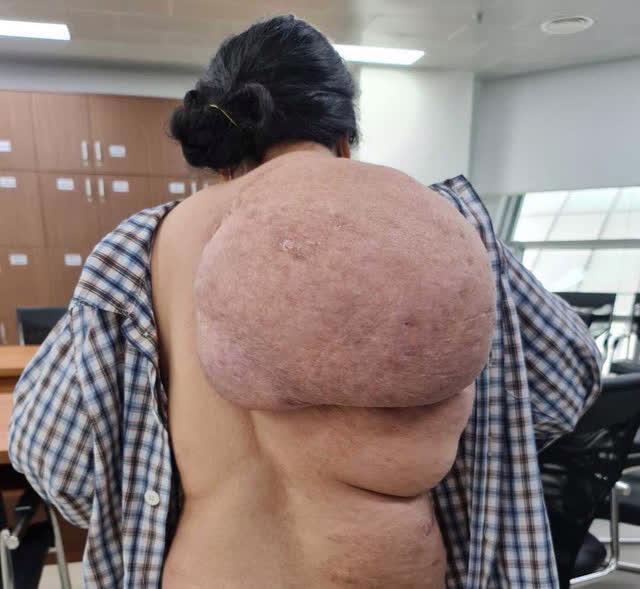 Phẫu thuật cắt bỏ khối u mỡ khổng lồ ở bả vai nữ bệnh nhân - Ảnh 1.