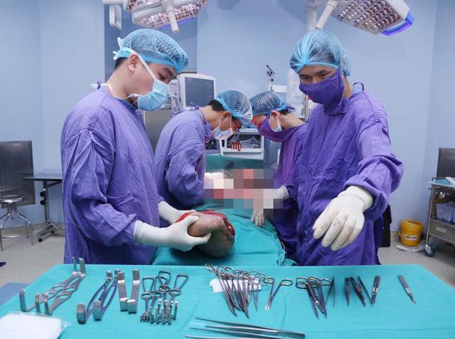 Phẫu thuật cắt bỏ khối u mỡ khổng lồ ở bả vai nữ bệnh nhân - Ảnh 2.