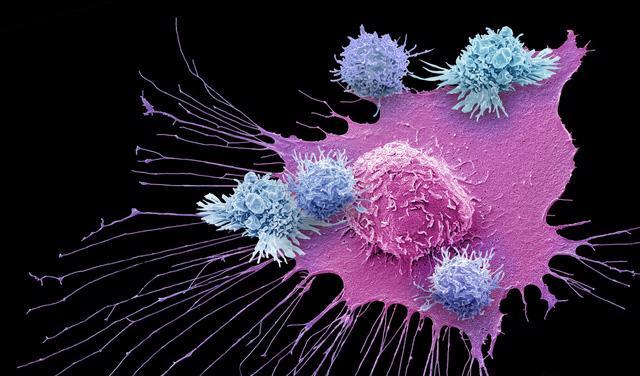 Liệu pháp miễn dịch điều trị ung thư: có nên kỳ vọng? - Ảnh 3.