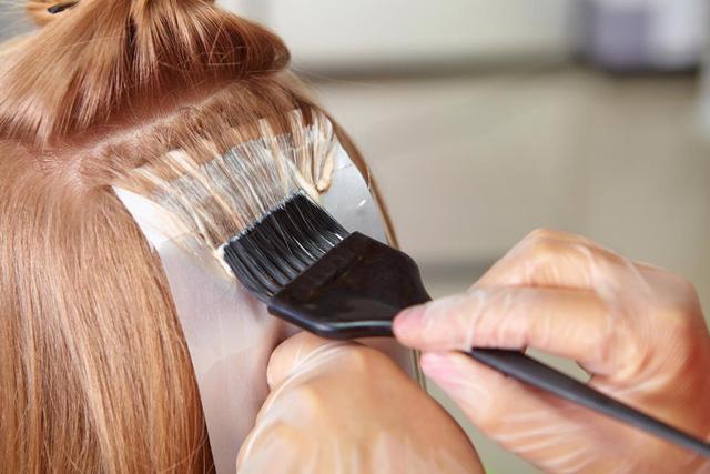 Cẩn trọng với triệu chứng dị ứng thuốc nhuộm tóc - Ảnh 2.