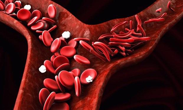 Thuốc mới điều trị bệnh hồng cầu lưỡi liềm - Ảnh 1.