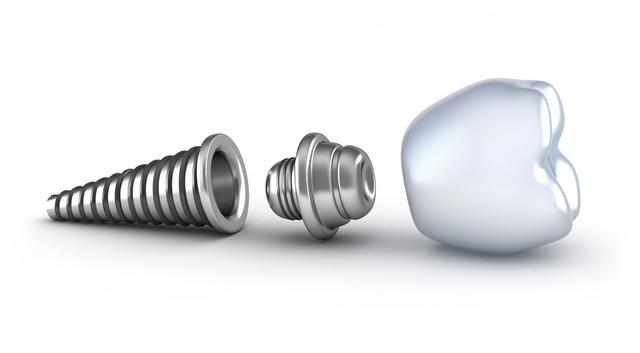 Trụ Implant nào tốt và phù hợp với bạn? - Ảnh 2.