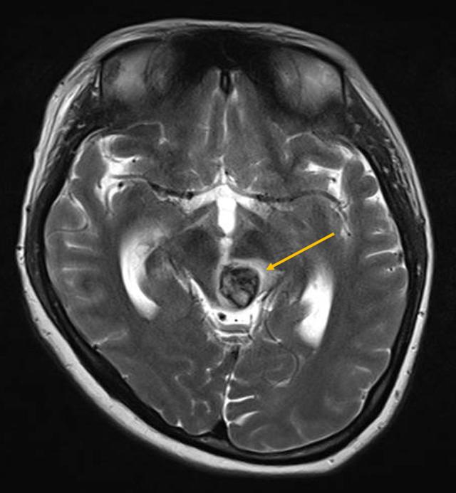 Một sản phụ bị dị dạng mạch máu não hiếm gặp - Ảnh 1.