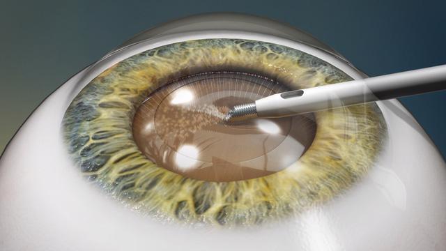 Thủy tinh thể nhân tạo thế hệ mới từ collagen giúp cải thiện lão thị - Ảnh 2.
