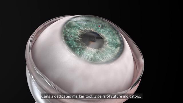 Cấy ghép giác mạc nhân tạo thành công cho bệnh nhân mù 10 năm - Ảnh 1.