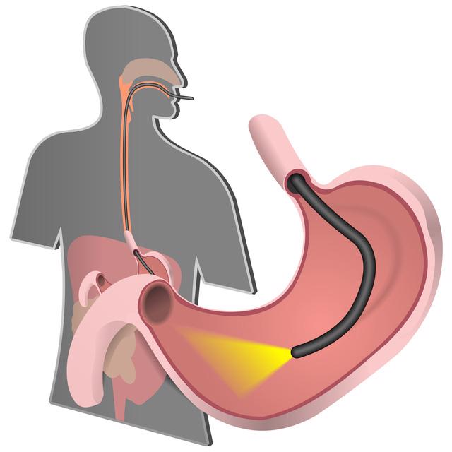 Ứng dụng AI vào điều trị bệnh lý tiêu hoá - Ảnh 2.