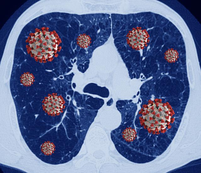 Số ca ung thư phổi phát hiện sớm có nguy cơ giảm do Covid-19 - Ảnh 1.