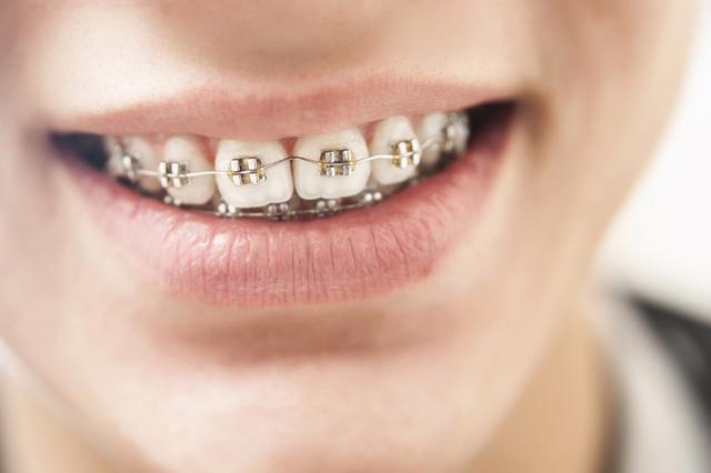 Niềng răng, đừng ham rẻ! - Ảnh 2.