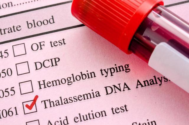 Trên 12 triệu người mang gen bệnh tan máu bẩm sinh - Ảnh 1.