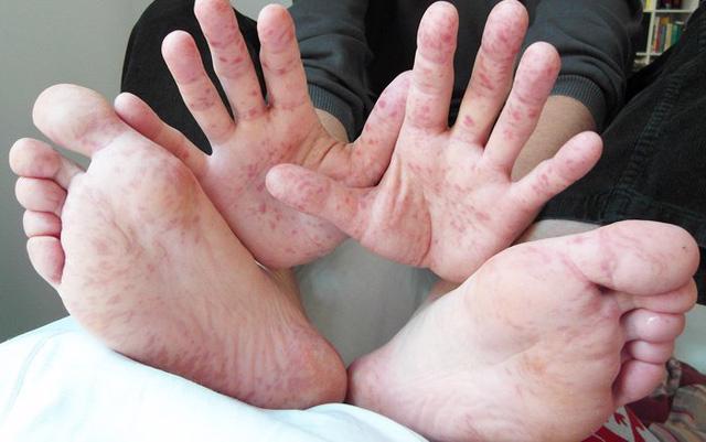 Hy hữu: một người lớn mắc tay chân miệng - Ảnh 2.