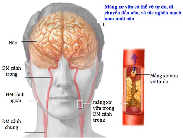 Không chủ quan khi có thiếu máu não cục bộ thoáng qua - Ảnh 1.