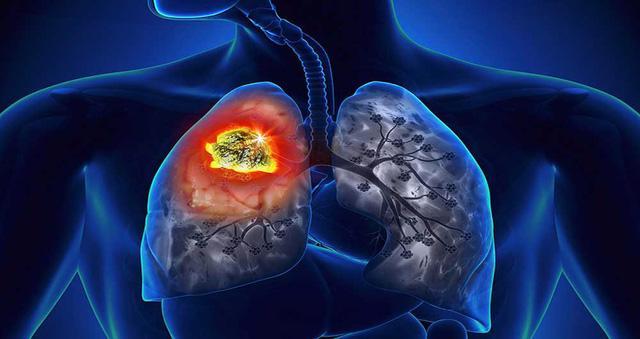 Phòng ngừa bệnh bụi phổi - Ảnh 1.