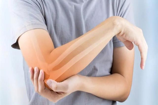 Bệnh nhân sỏi thận nên đi kiểm tra loãng xương - Ảnh 2.