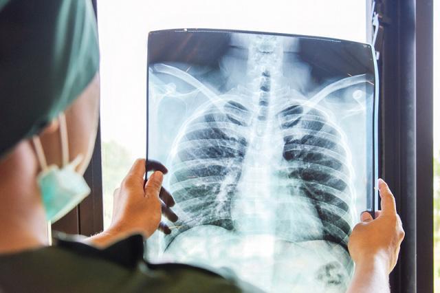 Thuốc lá điện tử làm tăng nguy cơ mắc bệnh phổi - Ảnh 2.