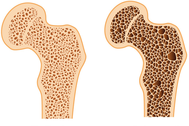 Vật liệu sinh học mới giúp điều trị loãng xương - Ảnh 1.
