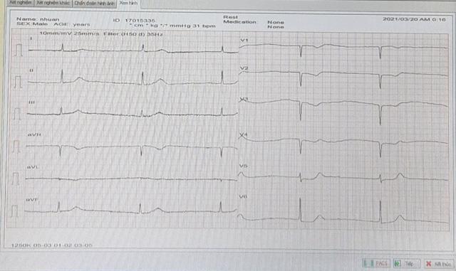 Theo dõi sát sao và phản ứng nhanh giúp cứu sống người nhồi máu cơ tim cấp - Ảnh 1.