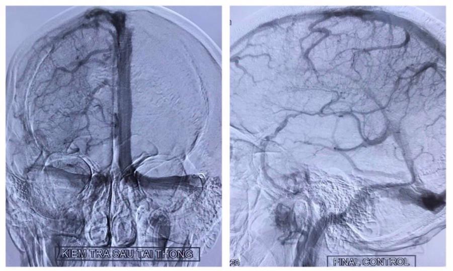 Phim chụp sau can thiệp cho thấy các xoang tĩnh mạch tái thông hoàn toàn, không có tình trạng ứ trệ các tĩnh mạch não.