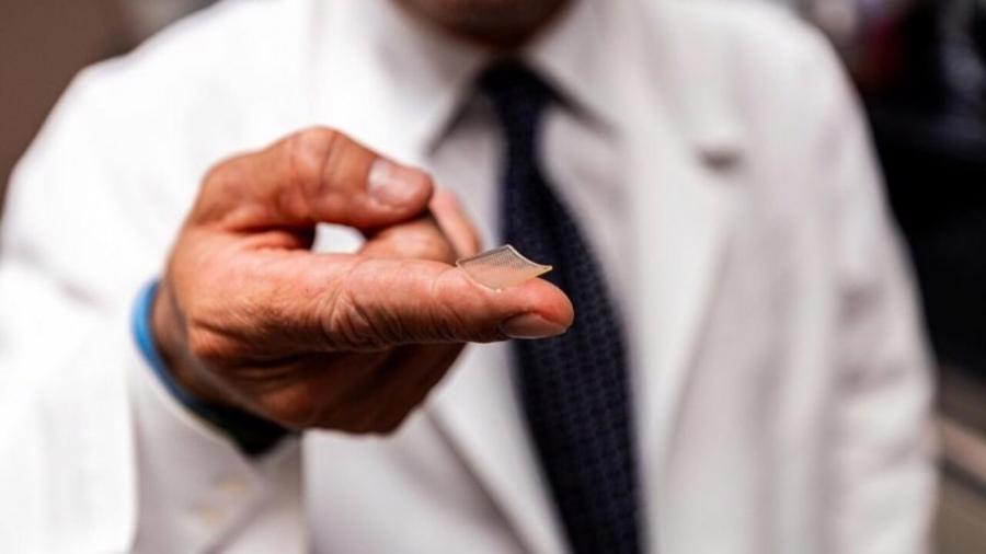 Miếng dán vaccine Covid-19 hứa hẹn thay thế phương pháp tiêm thông thường - Ảnh 1